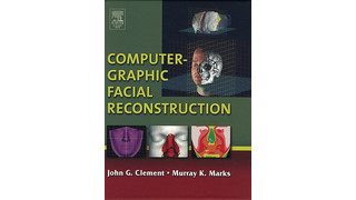 Computer-Graphic Facial Reconstruction