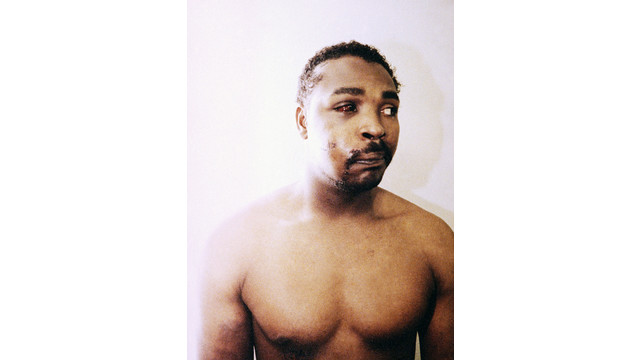 Rodney King's Injuries After Beating by LA Police.jpg_10730506.jpg