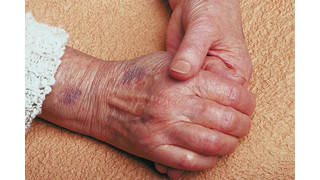 Elder abuse: The approaching tsunami