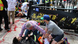 Doctors: All Boston Bombing Patients Likely to Live